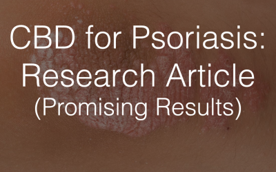 CBD for Psoriasis: Research Article (Promising Results)