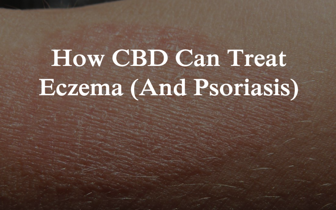 How CBD Can Treat Eczema (And Psoriasis)